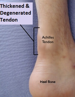 Non-insertional Achilles Tendonitis.  Note the thickening in the tendon