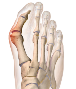 Bunions are common causes of foot pain