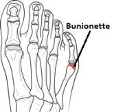 A bunionette or tailor's bunion develops at the little toe