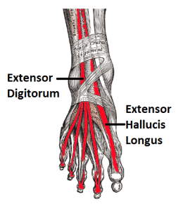Extensor tendonitis is caused by irritation of the extensor digitorum and extensor hallucis longus tendons