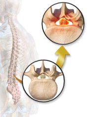 Spinal stenosis can cause nerve pain in foot