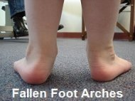 Flat feet is a common cause of heel bone spurs
