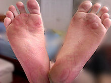 Various sizes of blisters on feet caused by friction