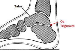 Os Trigonum is a small, extra bone at the back of the heel