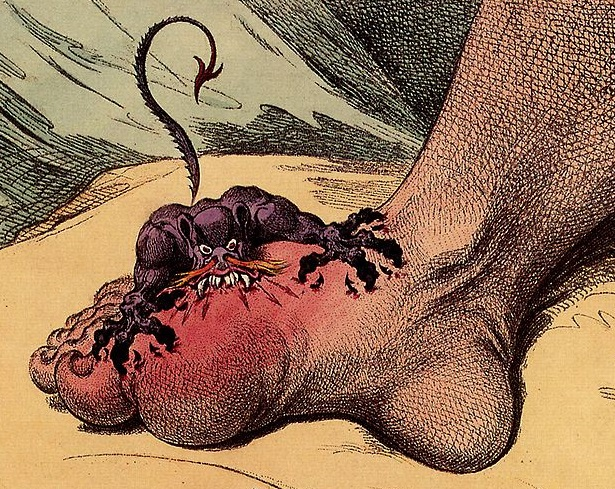 Gout foot is a common cause of toe swelling which can spread through the foot