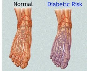 Diabetes is a common cause of nerve pain in the foot