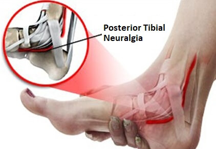Tarsal Tunnel Syndrome: Causes, Symptoms, Diagnosis & Treatment