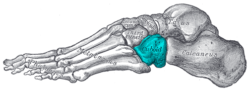 In Cuboid Syndrome, the cuboid bone of the midfoot becomes partially dislocated, dropping out of its usual alignment