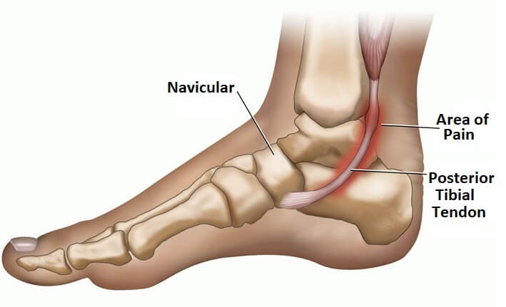 Posterior Tibial Tendonitis: Causes, symptoms, treatment and surgery