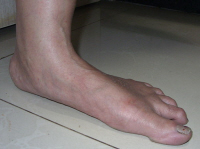 A majority of people who suffer from cuboid subluxation have over-pronated (flat) feet