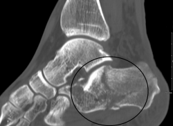 Calcaneal fractures cause foot heet pain