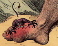 Foot gout that affects the big toe is known as Podagra