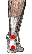 Locations: 1) Insertional Achilles Tendonitis. 2) Non-insertional Achilles Tendonitis