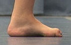 Note the high foot arches and curled hammertoes, both common problems with Charcot Marie Tooth Disease