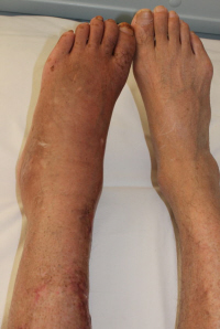 Chronic Regional Pain Syndrome (CRPS) causes extreme burning foot pain