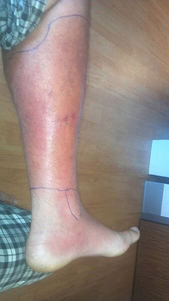 Cellulitis is a bacterial infection that enter the body through a break in the skin.  It commonly causes pain, redness and swelling of teh lower leg, ankle and foot