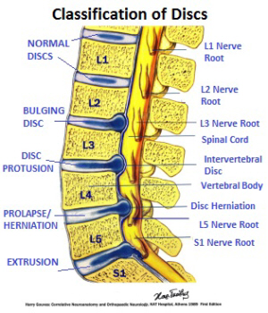 Classification of spinal disc problems