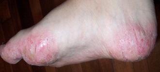 Dyshidrotic eczema of the foot