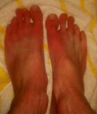 Erythromelalgia is a rare condition where blood vessels are intermittently blocked causing burning foot pain