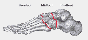 The foot bones are often grouped into 3 sections: the forefoot, midfoot and hindfoot