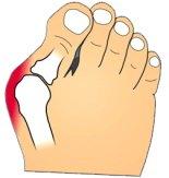 Hallux Abducto Valgus aka foot bunion