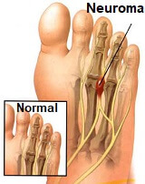 Nerve problems usually cause pins and needles, burning or cold sensations in the feet as well as weakness