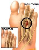 A Morton's Neuroma causes burning pain in foot and feels like you are standing on a pebble
