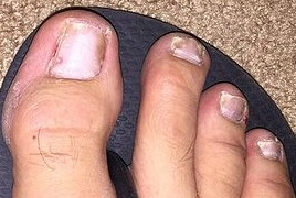 Nail psoriasis typically presents with thick, discolored nails. There may be small spots underneath the nail that look like a drop of blood or oil, and there may be ridges across the nail