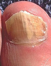 Fungal nail infections often result in thick, yellow toenails