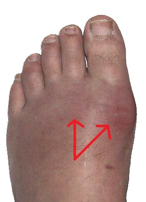 Foot gout affecting the big toe and second toe