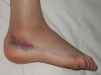 A severely sprained ankle will result in immediate swelling of the foot and ankle due to bleeding into the joint