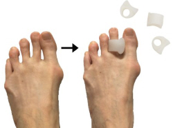 Compare the best toe spacer bunion splints