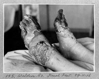Unidentified WW1 soldier with Trench Feet