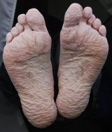 Trench foot causing numbness and bottom of foot pain