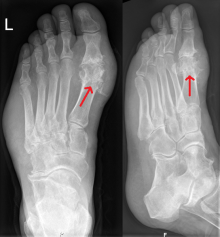 X-ray showing foot gout affecting the big toe, aka podagra