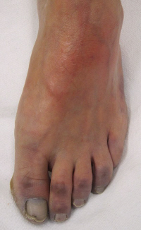 Diabetic Blisters On Foot Pictures, Images ... - Photobucket