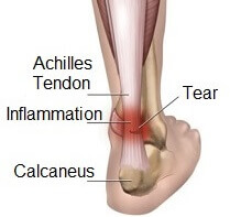 Achilles tendonitis is one of the common causes of foot pain