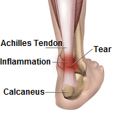 Achilles tendonitis is characterised by inflammation and/or degeneration of the achilles tendon