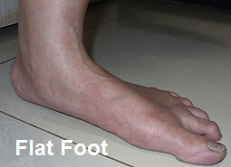 Flat feet are a common cause of foot arch pain