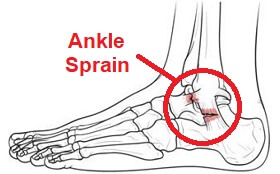 Ligament injuries such as an ankle sprain are the most common of all foot and ankle injuries