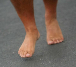 Going barefoot dramatically reduces your chances of developing an ingrown toenail