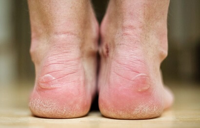 Blisters On Feet Toes Causes Treatment Foot Pain Explored