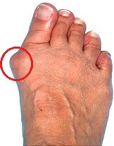A bony lump is one of the most common bunion symptoms