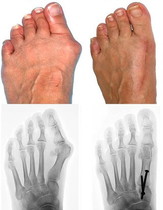 How to make the best Bunion Surgery Recovery