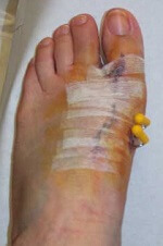Scar following bunion surgery