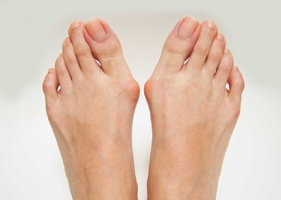Bunion Symptoms: Find out about the common causes, symptoms and best treatment options for foot bunions