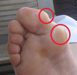 Calluses are one of many bunion symptoms. Note the areas of thickened, hardened skin.