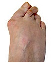 Changes in foot shape and toe position are common bunion symptoms