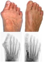 Before and after bunion surgery images
