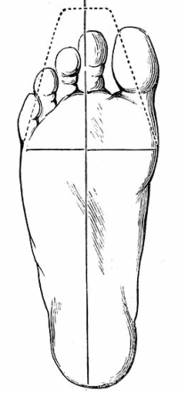 Wearing tight, narrow or pointed shoes, especially high heels pushes the toes inwards increasing the risk of developing painful bunions